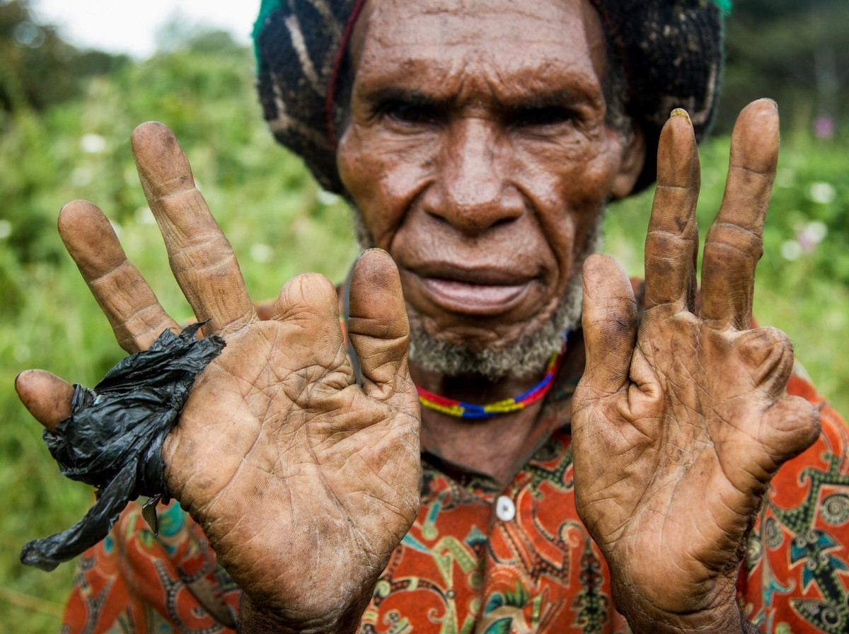 Tradisi Potong Jari Ala Suku Dani, Mengerikan Namun Sarat Akan Makna
