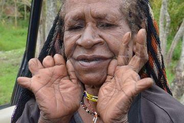 Salah satu warga Suku Dani dengan jari terpotong | Sumber: grid.id